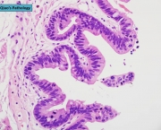 Metaplasia Intestinal - Sintomas (2)