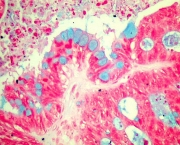 Metaplasia Intestinal - Sintomas (4)