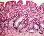 Metaplasia Intestinal - Sintomas (10)