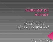 Sindrome de Alport (5)
