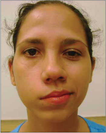 Facial paralysis edema pre menstrual are not