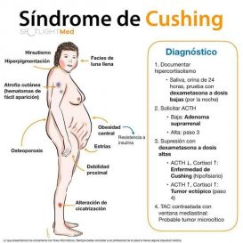 Síndrome de Cushing - Diagnóstico
